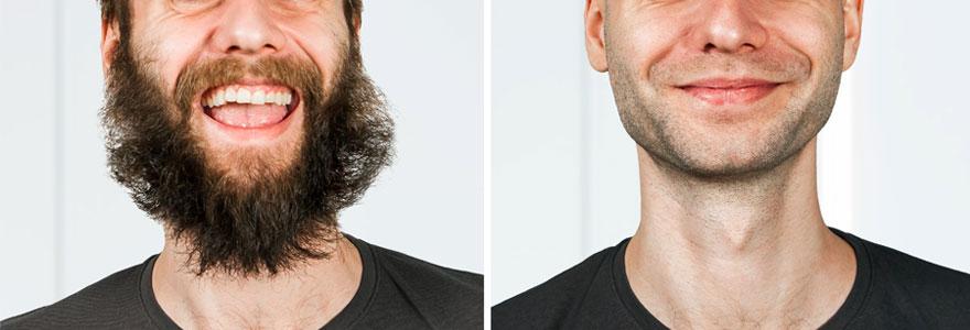 Greffer une moustache